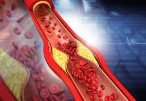 Familiar Hypercholesterolemia (FH) panel
